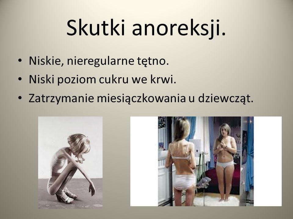 Skutki anoreksji. Niskie, nieregularne tętno. Niski poziom cukru we krwi. Zatrzymanie miesiączkowania u dziewcząt.