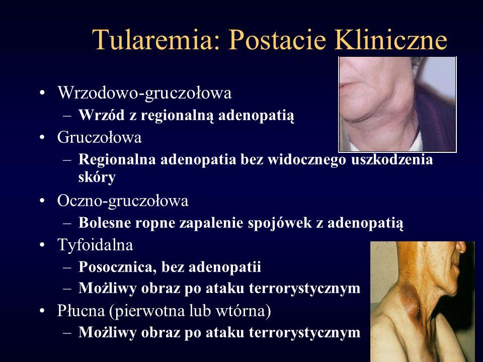 Tularemia: Płucna Inkubacja: 3 do 5 dni (1-21 dni) Nagły wzrost temperatury, dreszcze, ból głowy, mięśni, suchy kaszel Segmentalne/płatowe nacieki w płucach, powiększenie węzłów chłonnych śródpiersia śmiertelność 30%; < 10% leczonych USAMRICD