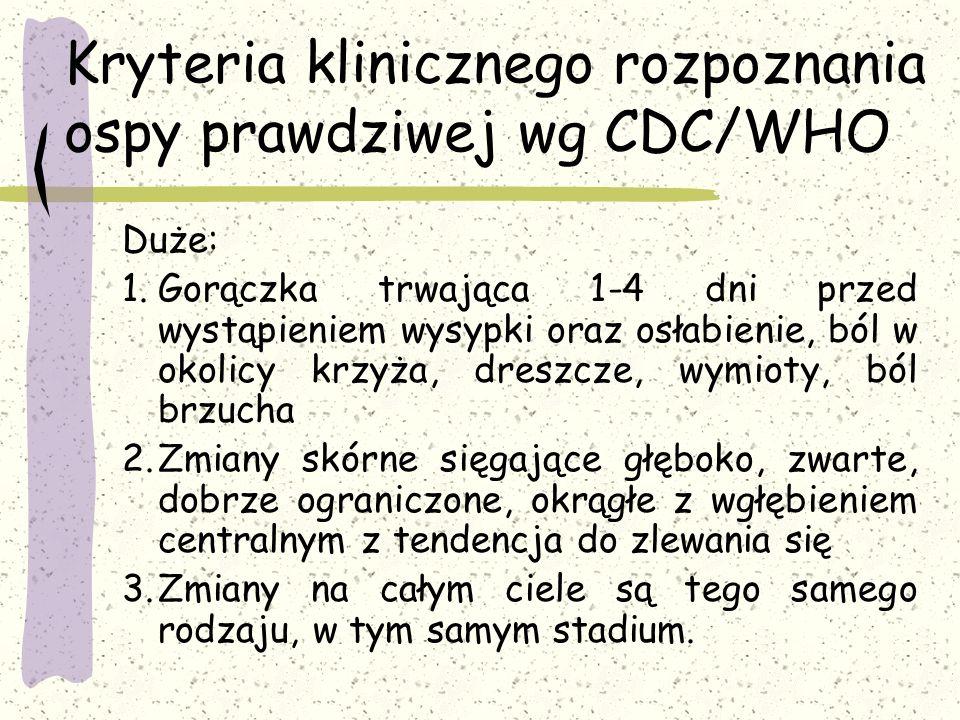 Kryteria klinicznego rozpoznania ospy prawdziwej wg CDC/WHO Duże: 1.Gorączka trwająca 1-4 dni przed wystąpieniem wysypki oraz osłabienie, ból w okolic