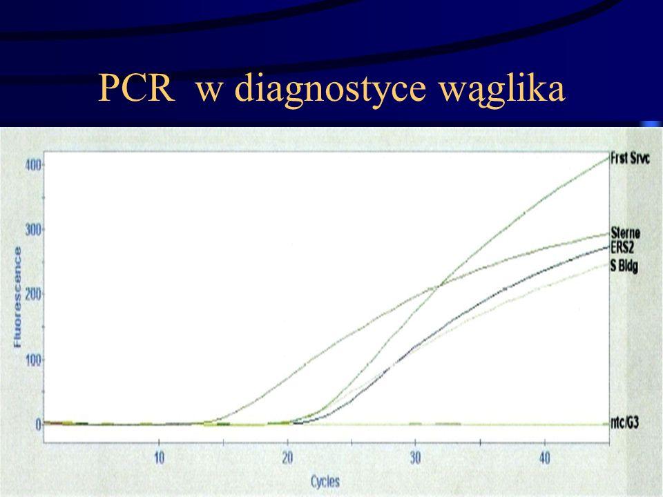 PCR w diagnostyce wąglika
