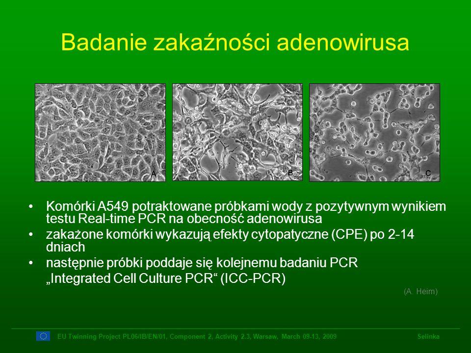 Komórki A549 potraktowane próbkami wody z pozytywnym wynikiem testu Real-time PCR na obecność adenowirusa zakażone komórki wykazują efekty cytopatyczn