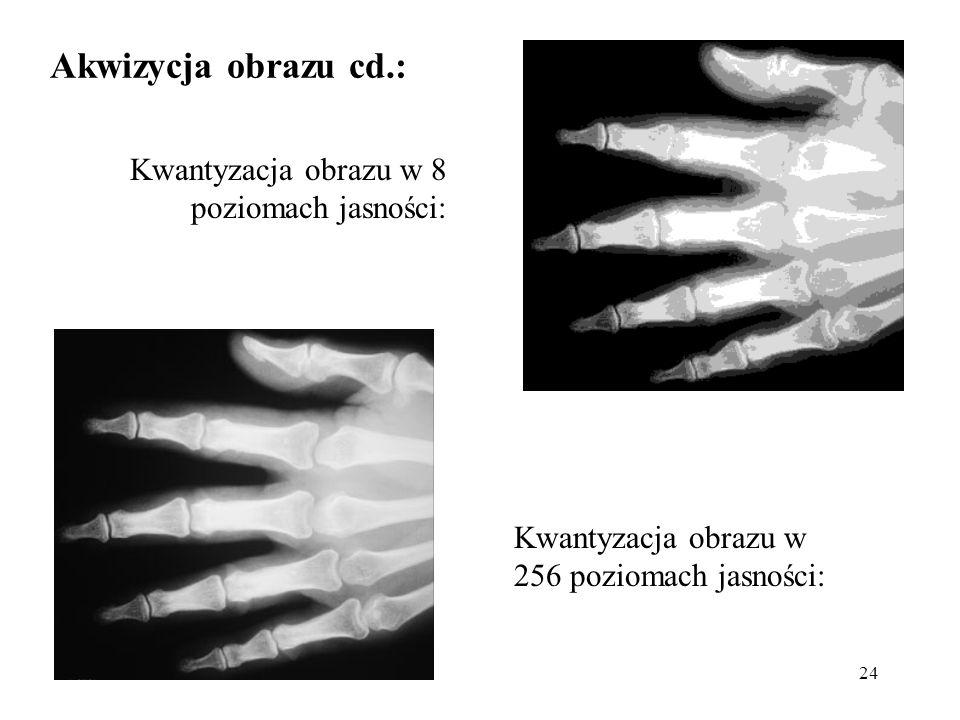 24 Kwantyzacja obrazu w 256 poziomach jasności: Kwantyzacja obrazu w 8 poziomach jasności: Akwizycja obrazu cd.: