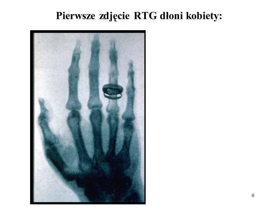 6 Pierwsze zdjęcie RTG dłoni kobiety: