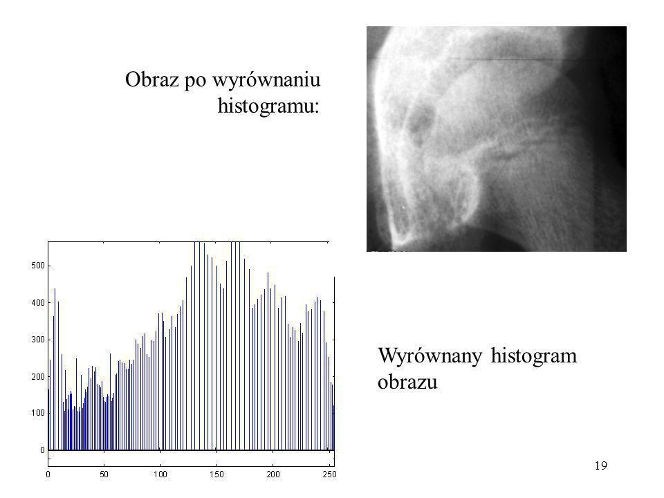 19 Obraz po wyrównaniu histogramu: Wyrównany histogram obrazu