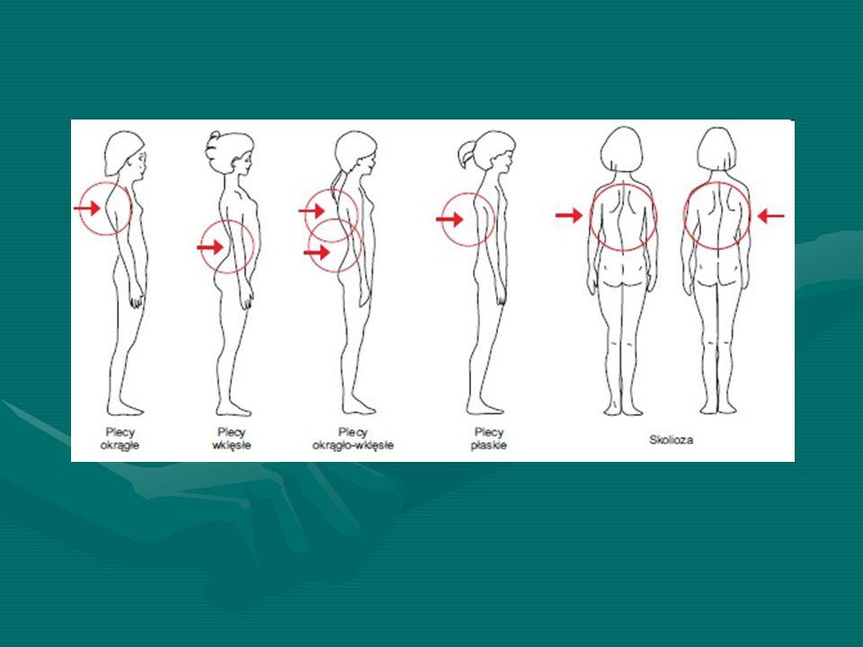 Wady postawy Skolioza - Najpoważniejsza z wad postawy, zmienia ustawienie kręgosłupa we wszystkich trzech płaszczyznach. Duże skoliozy mogą zaburzać f