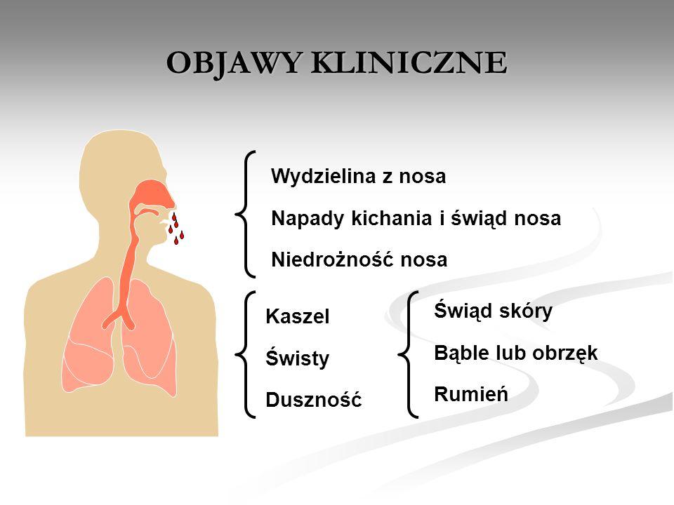 Astma i alergia u 8 letniego chłopca zapalenie spojówek niedrożność nosa duszność czuje się fatalnie