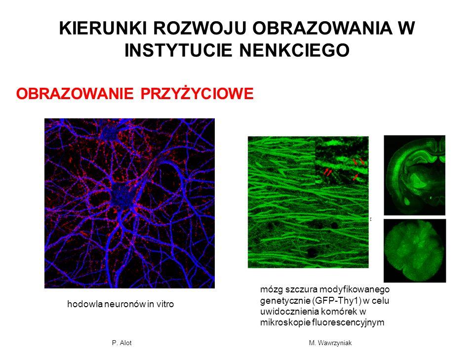 OBRAZOWANIE PRZYŻYCIOWE mózg szczura modyfikowanego genetycznie (GFP-Thy1) w celu uwidocznienia komórek w mikroskopie fluorescencyjnym KIERUNKI ROZWOJ