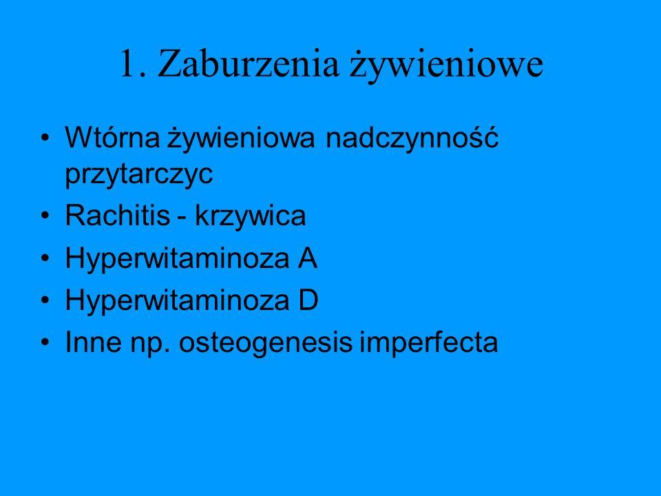 1. Zaburzenia żywieniowe Wtórna żywieniowa nadczynność przytarczyc Rachitis - krzywica Hyperwitaminoza A Hyperwitaminoza D Inne np. osteogenesis imper