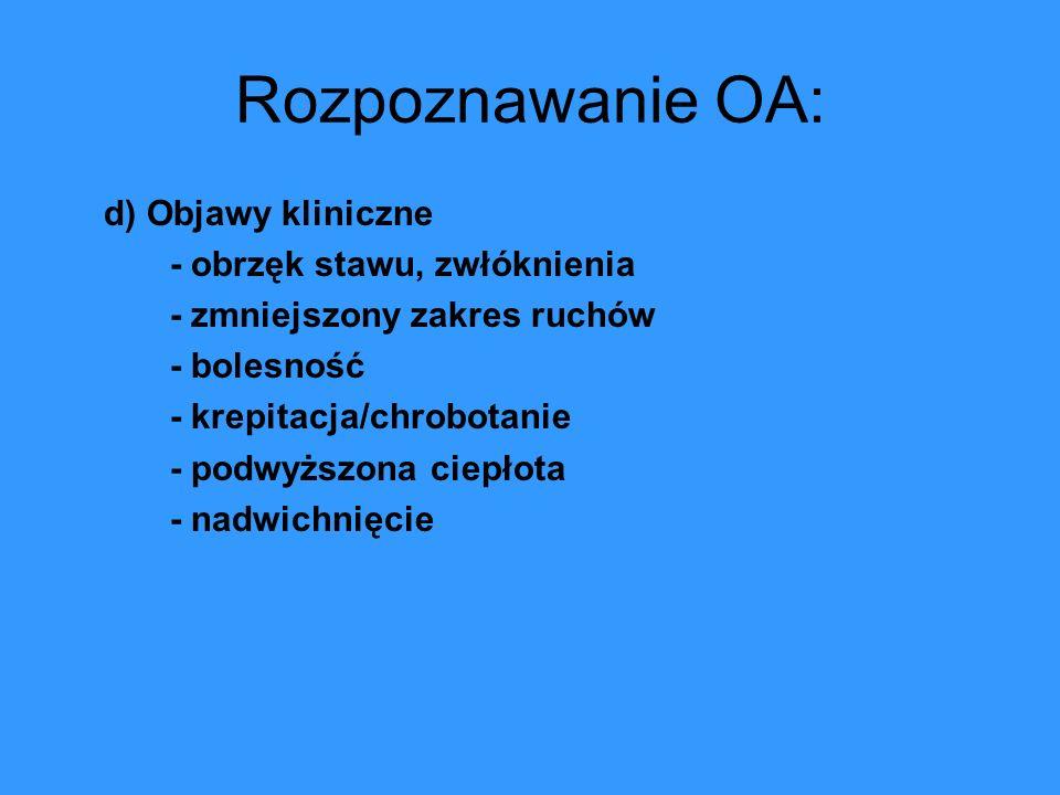 Rozpoznawanie OA: d) Objawy kliniczne - obrzęk stawu, zwłóknienia - zmniejszony zakres ruchów - bolesność - krepitacja/chrobotanie - podwyższona ciepł