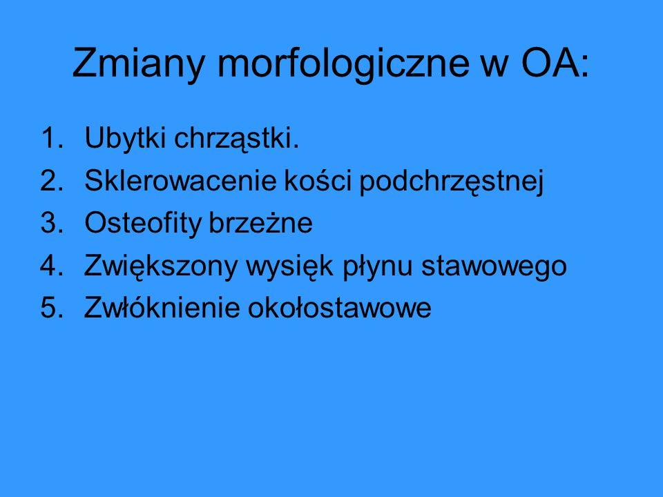 Zmiany morfologiczne w OA: 1.Ubytki chrząstki. 2.Sklerowacenie kości podchrzęstnej 3.Osteofity brzeżne 4.Zwiększony wysięk płynu stawowego 5.Zwłóknien