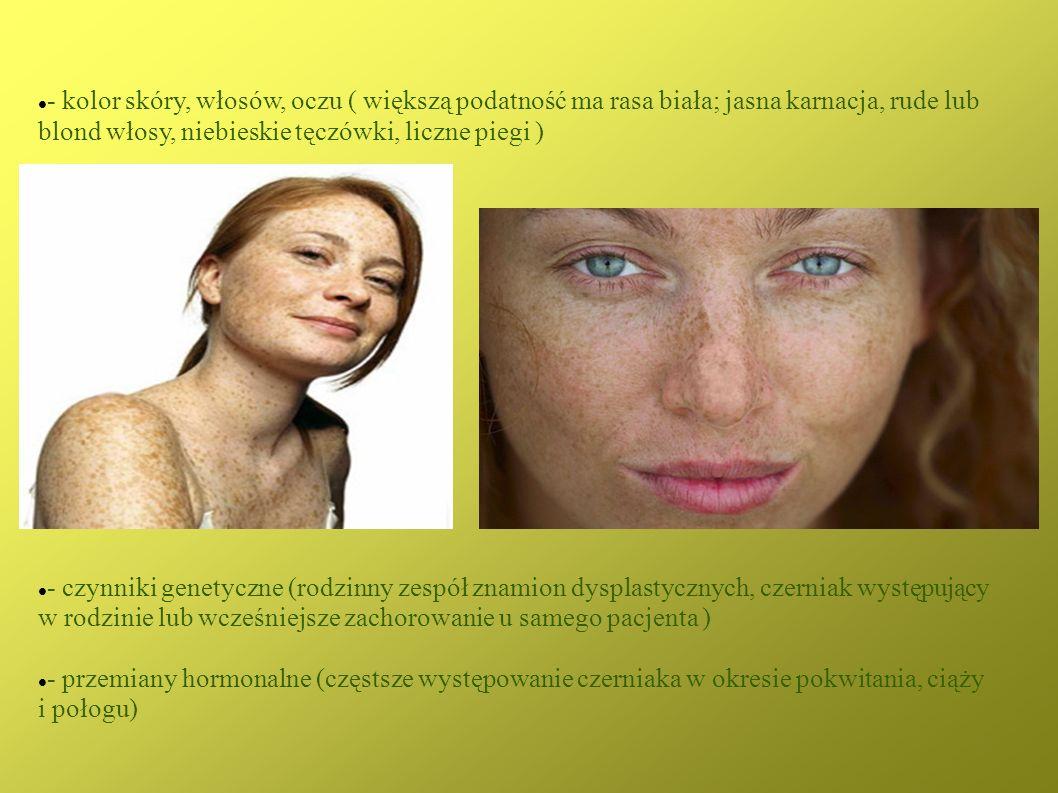 - kolor skóry, włosów, oczu ( większą podatność ma rasa biała; jasna karnacja, rude lub blond włosy, niebieskie tęczówki, liczne piegi ) - czynniki ge