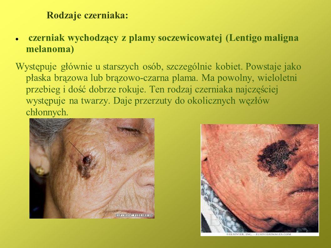 Rodzaje czerniaka: czerniak wychodzący z plamy soczewicowatej (Lentigo maligna melanoma) Występuje głównie u starszych osób, szczególnie kobiet. Powst