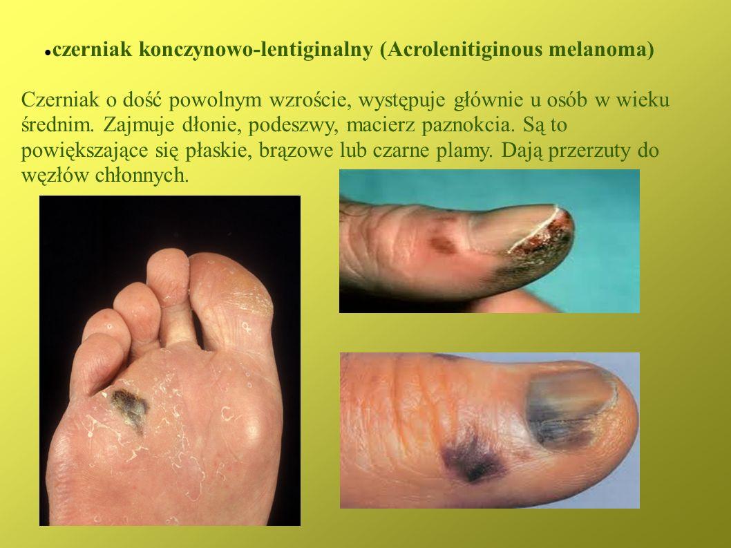 czerniak konczynowo-lentiginalny (Acrolenitiginous melanoma) Czerniak o dość powolnym wzroście, występuje głównie u osób w wieku średnim. Zajmuje dłon