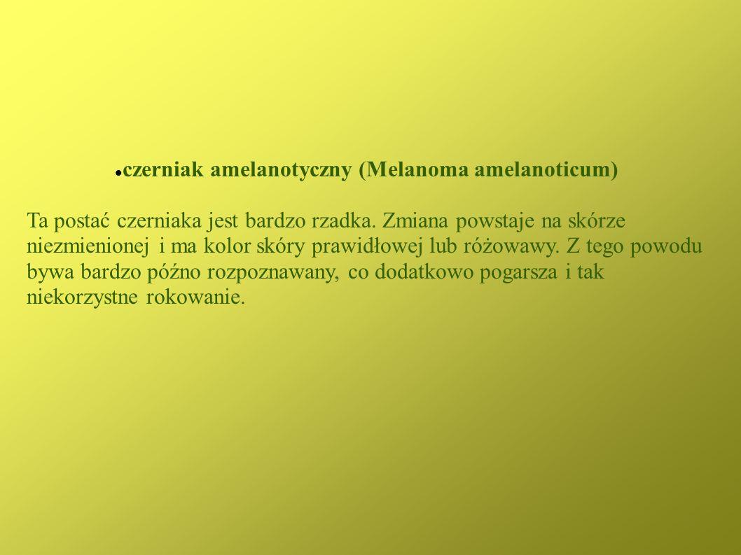 czerniak amelanotyczny (Melanoma amelanoticum) Ta postać czerniaka jest bardzo rzadka. Zmiana powstaje na skórze niezmienionej i ma kolor skóry prawid