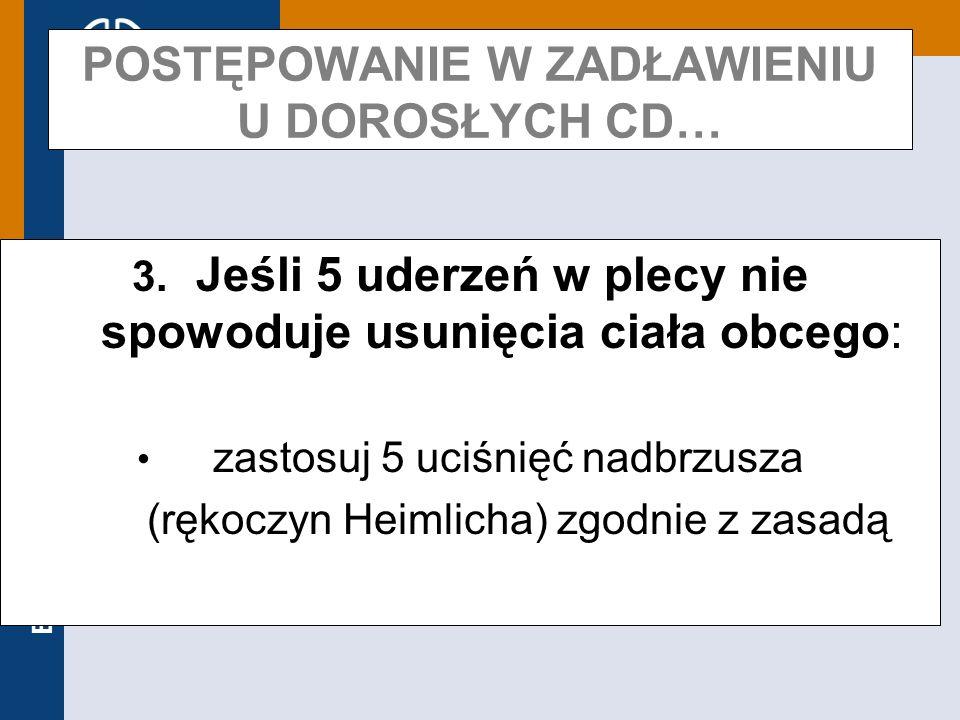 Europejska Rada Resuscytacji POSTĘPOWANIE W ZADŁAWIENIU U DOROSŁYCH CD… 3. Jeśli 5 uderzeń w plecy nie spowoduje usunięcia ciała obcego: zastosuj 5 uc