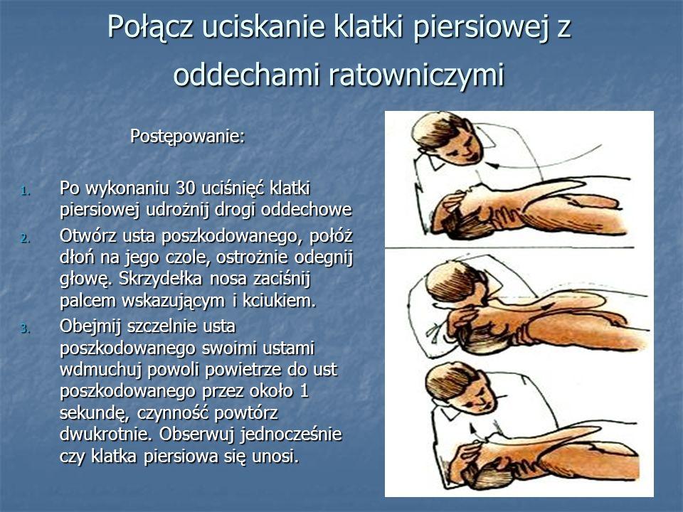 Połącz uciskanie klatki piersiowej z oddechami ratowniczymi Postępowanie: 1. Po wykonaniu 30 uciśnięć klatki piersiowej udrożnij drogi oddechowe 2. Ot