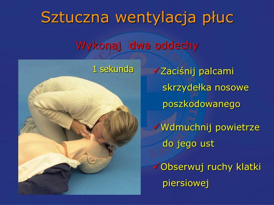 Sztuczna wentylacja płuc Wykonaj dwa oddechy Zaciśnij palcami Zaciśnij palcami skrzydełka nosowe skrzydełka nosowe poszkodowanego poszkodowanego Wdmuchnij powietrze Wdmuchnij powietrze do jego ust do jego ust Obserwuj ruchy klatki Obserwuj ruchy klatki piersiowej piersiowej 1 sekunda