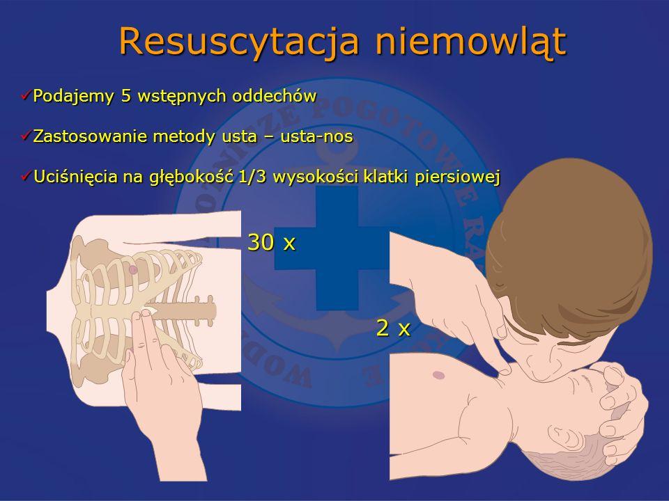 Resuscytacja niemowląt Podajemy 5 wstępnych oddechów Podajemy 5 wstępnych oddechów Zastosowanie metody usta – usta-nos Zastosowanie metody usta – usta-nos Uciśnięcia na głębokość 1/3 wysokości klatki piersiowej Uciśnięcia na głębokość 1/3 wysokości klatki piersiowej 30 x 2 x