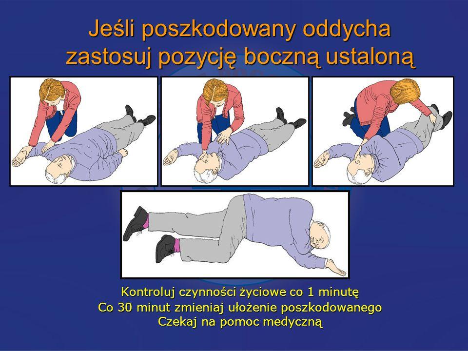 Jeśli poszkodowany oddycha zastosuj pozycję boczną ustaloną Kontroluj czynności życiowe co 1 minutę Co 30 minut zmieniaj ułożenie poszkodowanego Czeka