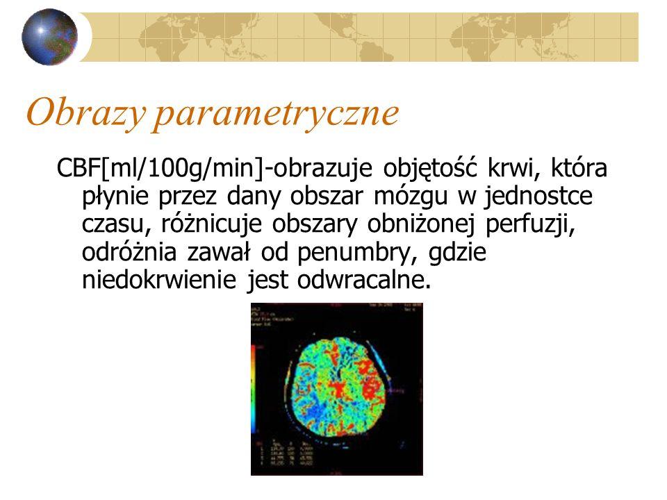 Obrazy parametryczne CBF[ml/100g/min]-obrazuje objętość krwi, która płynie przez dany obszar mózgu w jednostce czasu, różnicuje obszary obniżonej perf