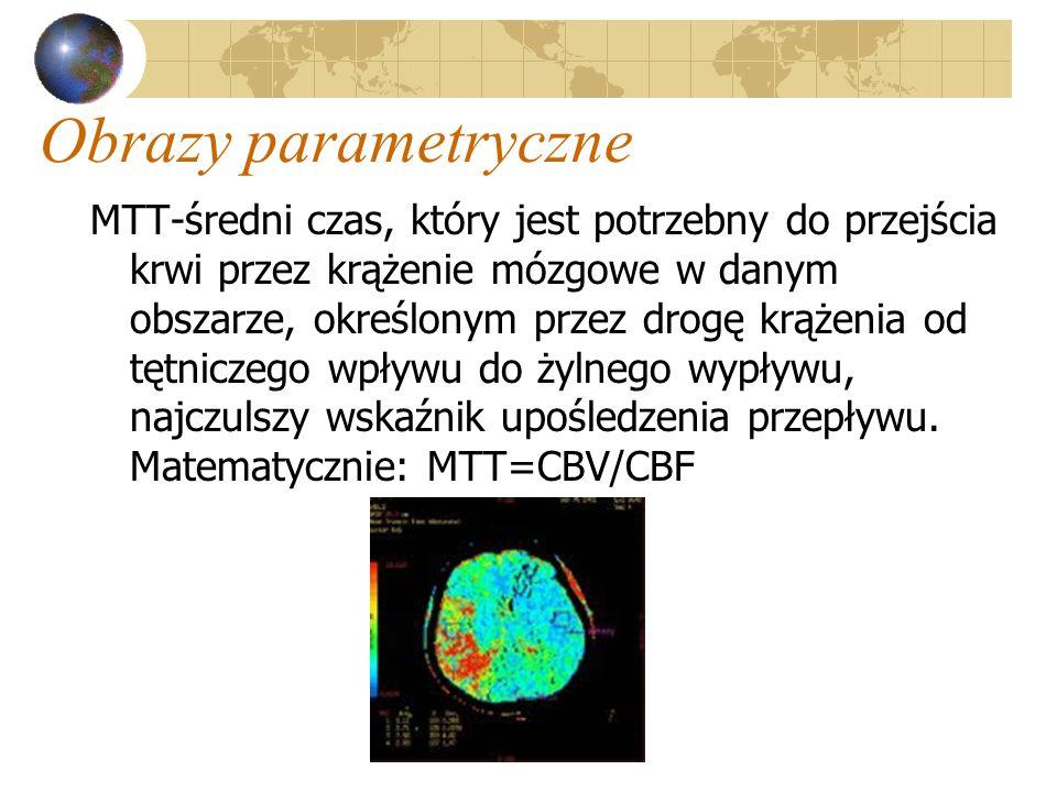 Obrazy parametryczne MTT-średni czas, który jest potrzebny do przejścia krwi przez krążenie mózgowe w danym obszarze, określonym przez drogę krążenia