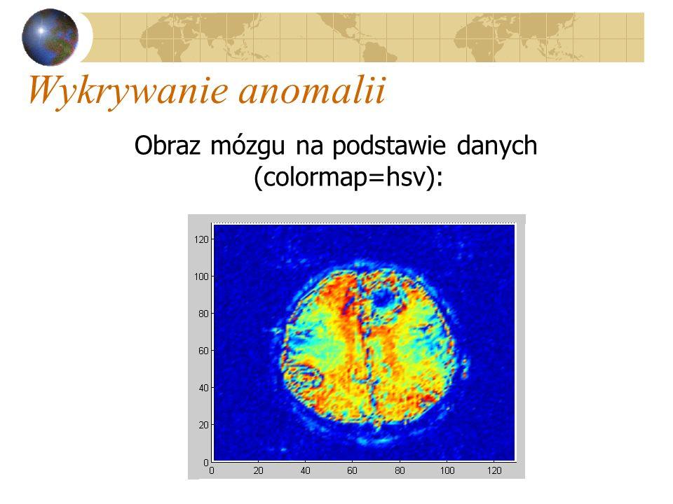 Wykrywanie anomalii Obraz mózgu na podstawie danych (colormap=hsv):