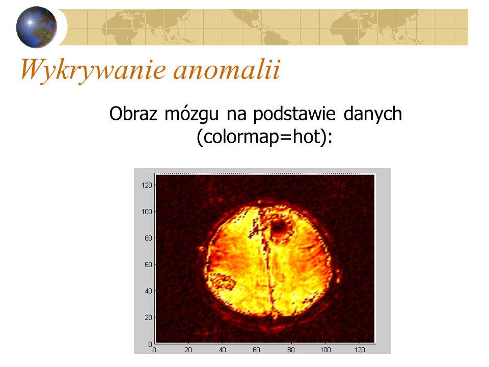 Wykrywanie anomalii Obraz mózgu na podstawie danych (colormap=hot):