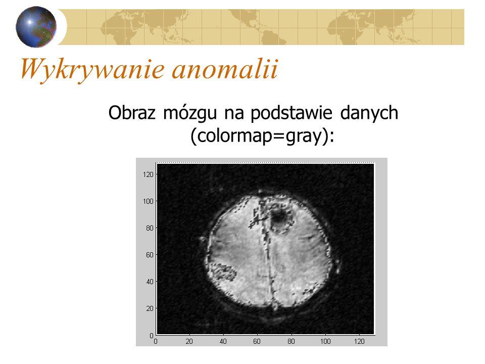 Wykrywanie anomalii Obraz mózgu na podstawie danych (colormap=gray):