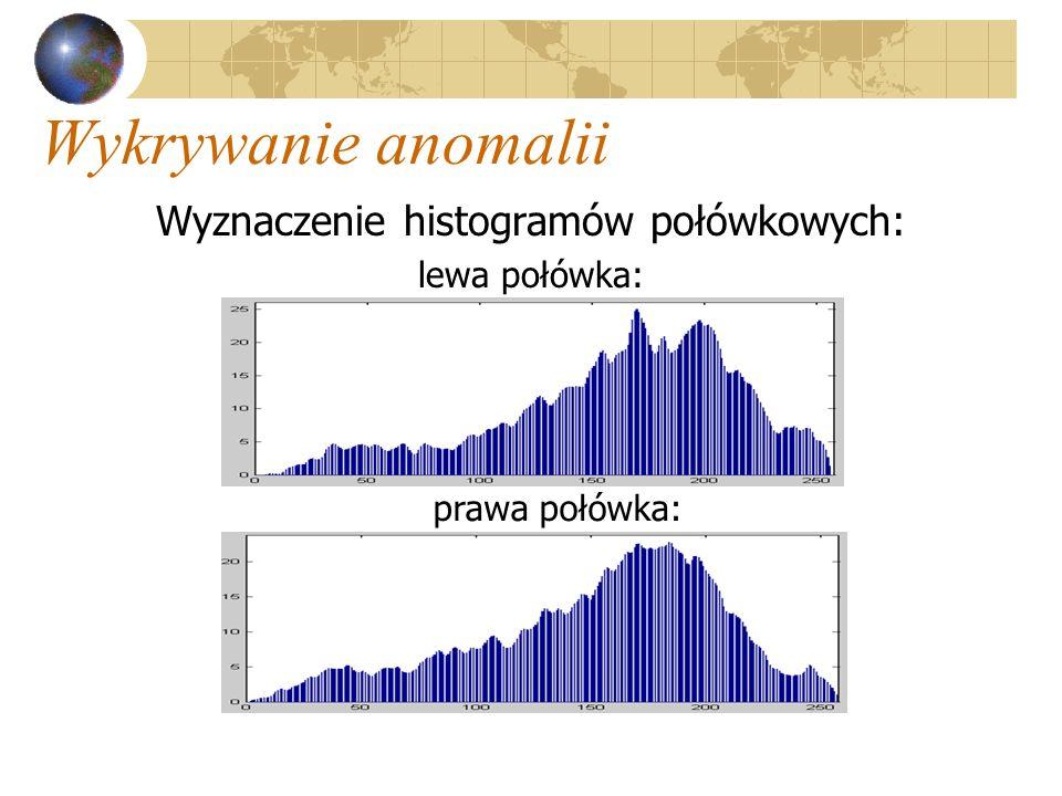 Wykrywanie anomalii Wyznaczenie histogramów połówkowych: lewa połówka: prawa połówka: