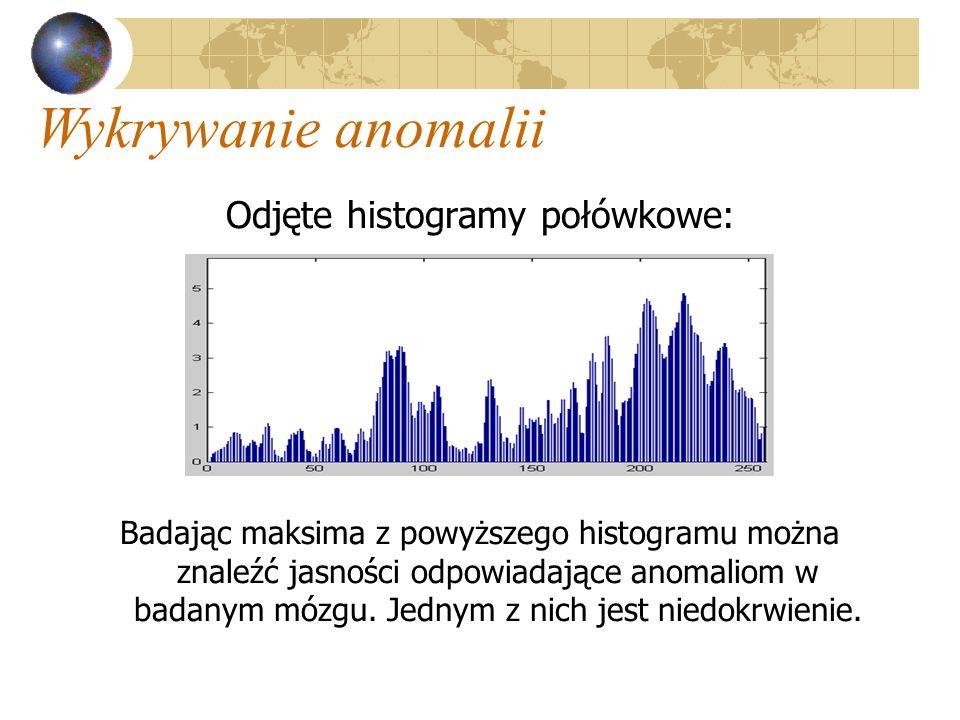 Odjęte histogramy połówkowe: Badając maksima z powyższego histogramu można znaleźć jasności odpowiadające anomaliom w badanym mózgu. Jednym z nich jes