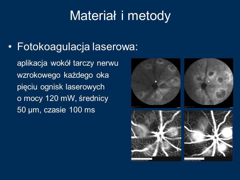 Materiał i metody Fotokoagulacja laserowa: aplikacja wokół tarczy nerwu wzrokowego każdego oka pięciu ognisk laserowych o mocy 120 mW, średnicy 50 µm,