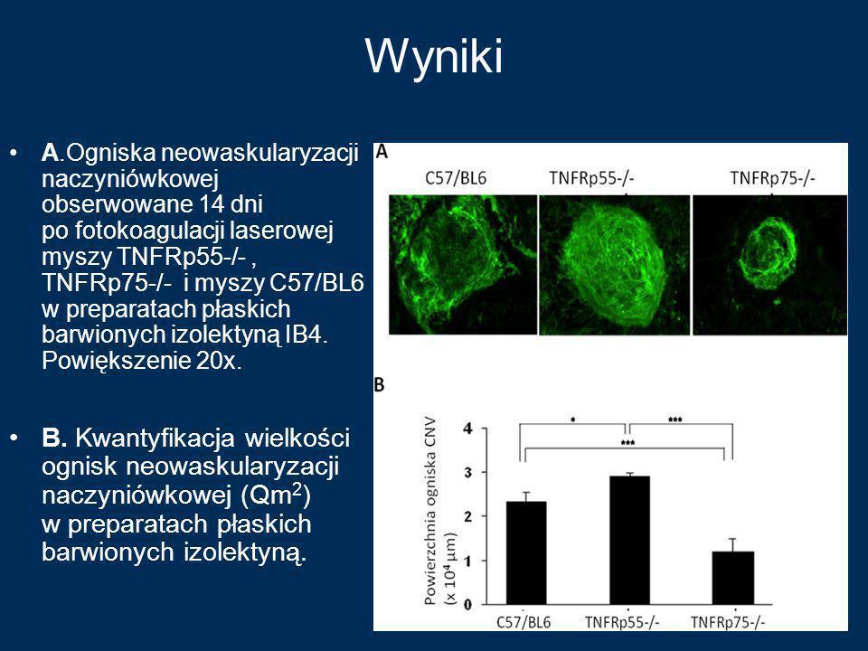 Wyniki A.Ogniska neowaskularyzacji naczyniówkowej obserwowane 14 dni po fotokoagulacji laserowej myszy TNFRp55-/-, TNFRp75-/- i myszy C57/BL6 w prepar