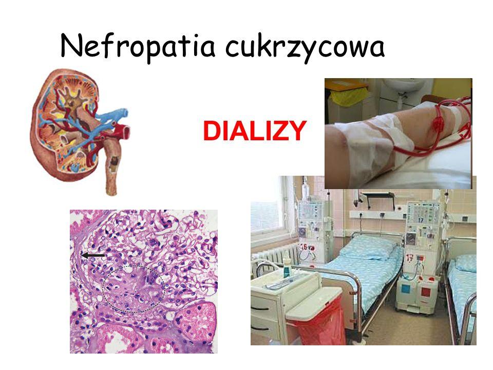 Nefropatia cukrzycowa DIALIZY