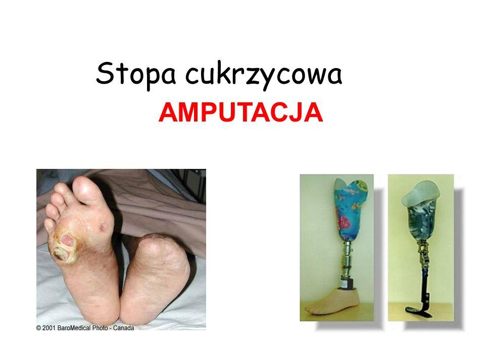 Stopa cukrzycowa AMPUTACJA