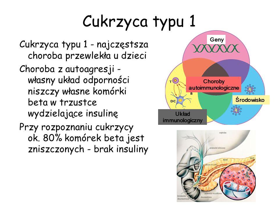 Cukrzyca typu 1 - najczęstsza choroba przewlekła u dzieci Choroba z autoagresji - własny układ odporności niszczy własne komórki beta w trzustce wydzi