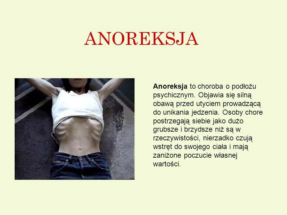 ANOREKSJA Anoreksja to choroba o podłożu psychicznym. Objawia się silną obawą przed utyciem prowadzącą do unikania jedzenia. Osoby chore postrzegają s