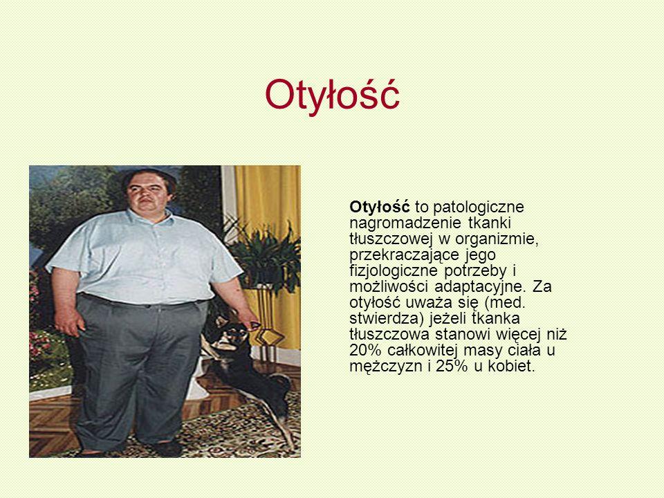 Otyłość Otyłość to patologiczne nagromadzenie tkanki tłuszczowej w organizmie, przekraczające jego fizjologiczne potrzeby i możliwości adaptacyjne. Za
