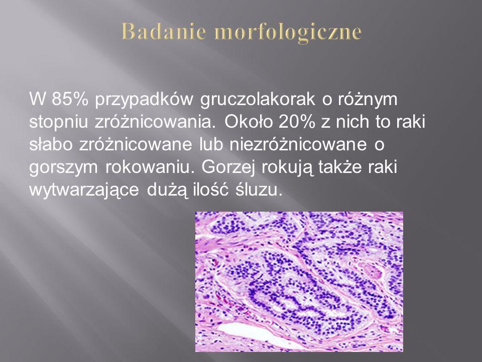 W 85% przypadków gruczolakorak o różnym stopniu zróżnicowania. Około 20% z nich to raki słabo zróżnicowane lub niezróżnicowane o gorszym rokowaniu. Go