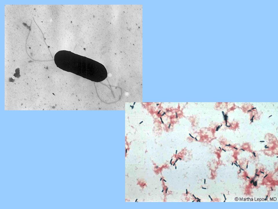 Zmiany anatomopatologiczne Brak typowych zmian makroskopowych Zmiany mikroskopowe: zapalenie opon mózgowych nacieki oko ł onaczyniowe komórek jednoj ą drzastych