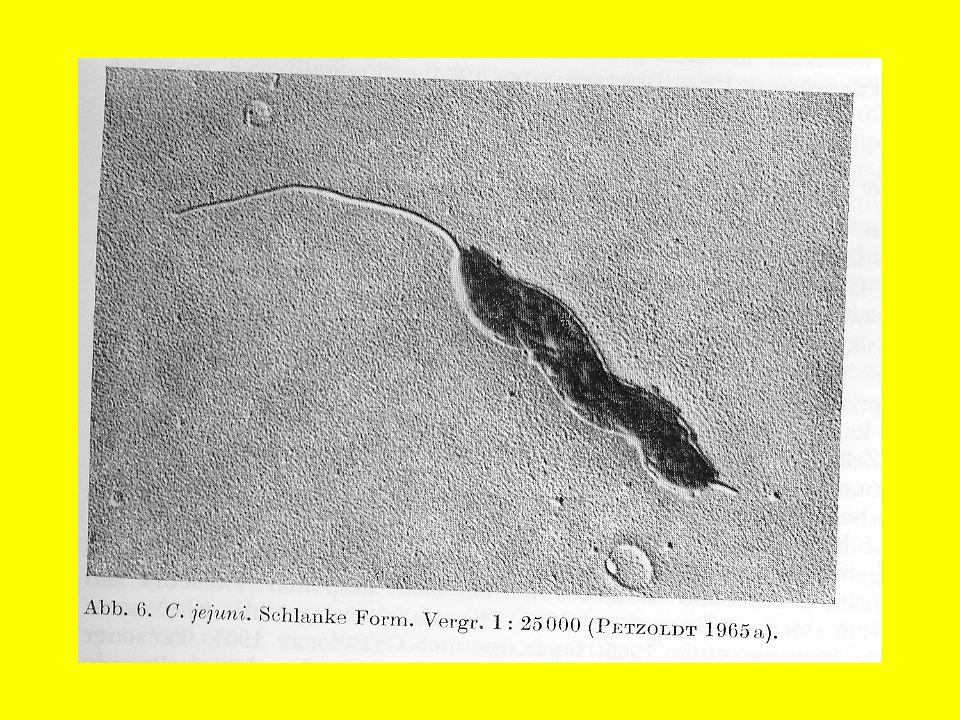 Epizootiologia Głównym źródłem zarazy są owce nosiciele siejący bakterie z kałem, wodami płodowymi i poronionymi płodami.