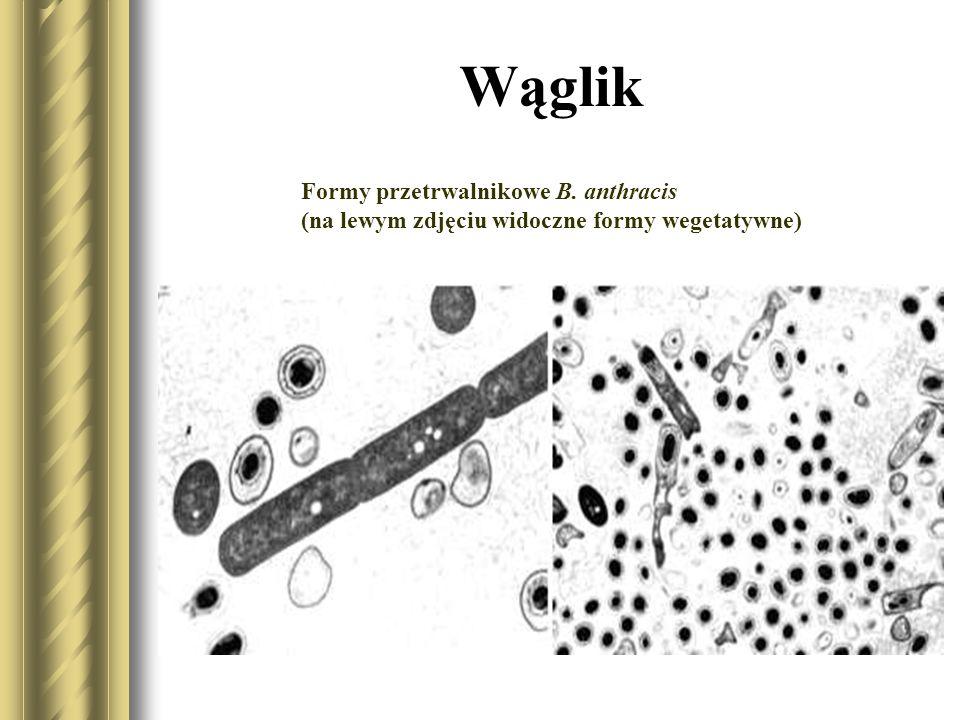 Wąglik Istnieje szereg czynników warunkujących chorobotwórczość laseczki wąglika.