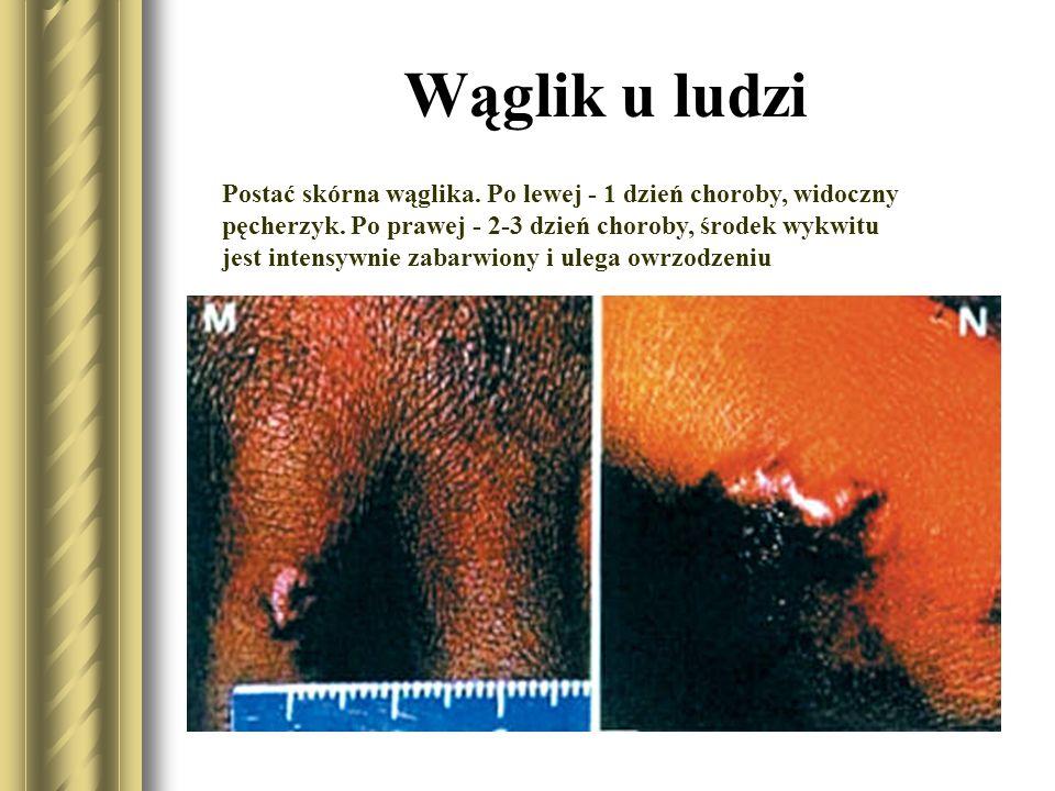 Wąglik u ludzi Skórna postać wąglika - czarna krosta (pustula maligna), zmiana na palcu