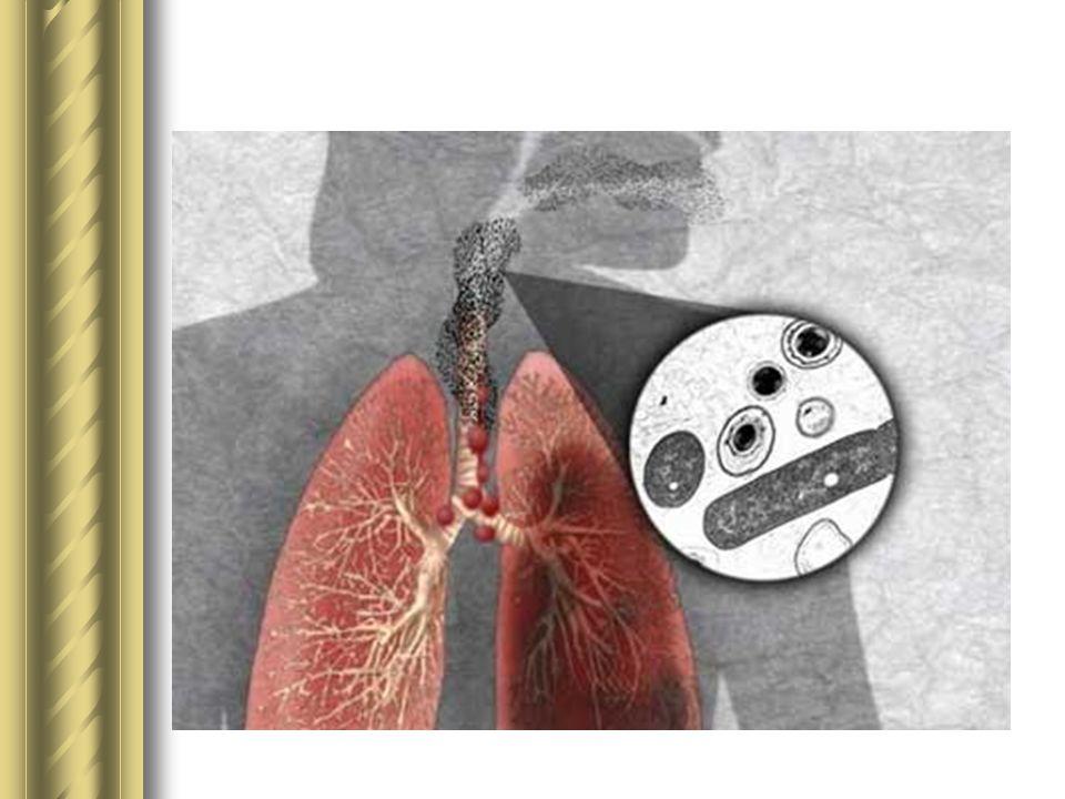 Wąglik u ludzi Śmiertelność w płucnej postaci wąglika u osób narażonych zawodowo (tzw.