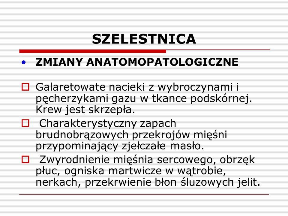 SZELESTNICA Badanie bakteriologiczne (bakterioskopowe i hodowlane).