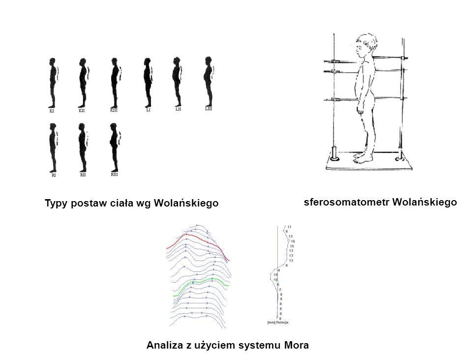 Typy postaw ciała wg Wolańskiego sferosomatometr Wolańskiego Analiza z użyciem systemu Mora
