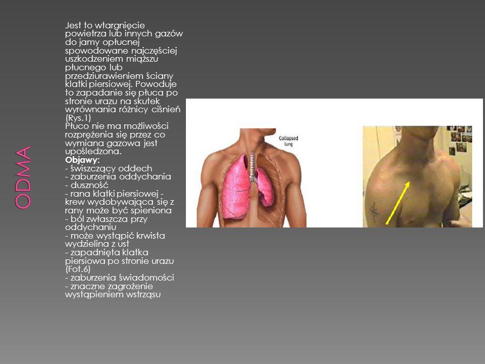 Jest to wtargnięcie powietrza lub innych gazów do jamy opłucnej spowodowane najczęściej uszkodzeniem miąższu płucnego lub przedziurawieniem ściany kla