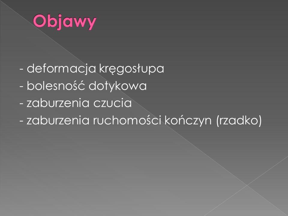 - deformacja kręgosłupa - bolesność dotykowa - zaburzenia czucia - zaburzenia ruchomości kończyn (rzadko)