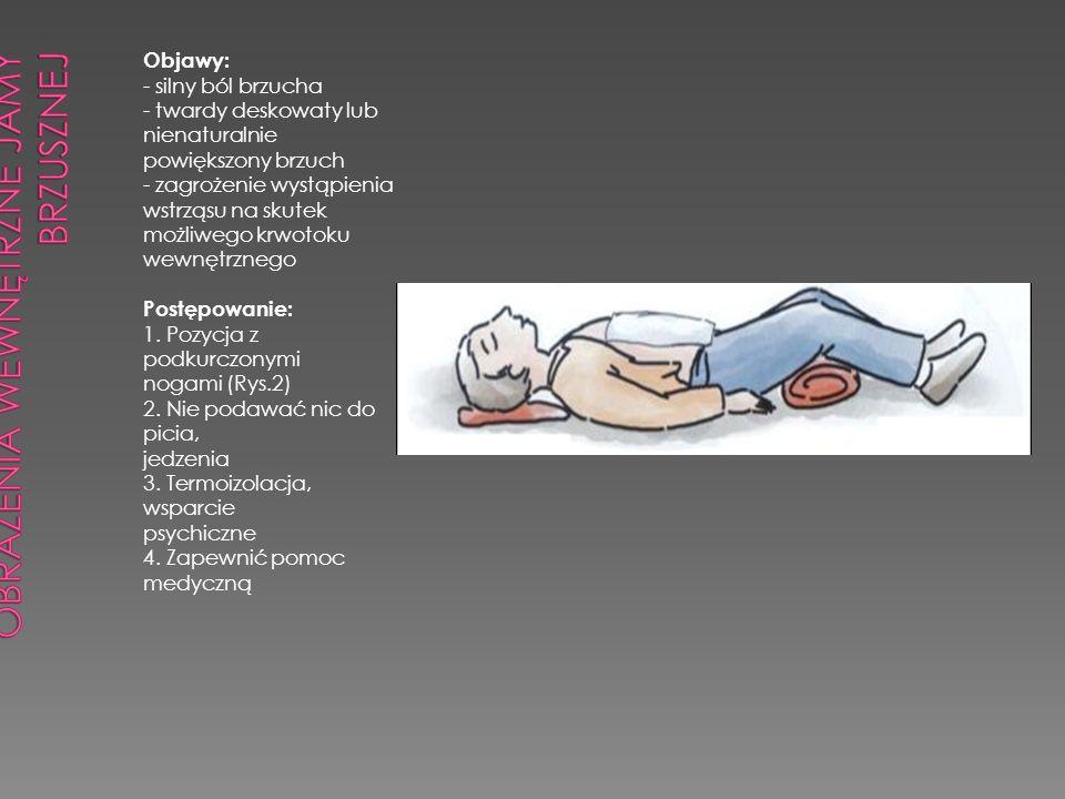 Objawy: - silny ból brzucha - twardy deskowaty lub nienaturalnie powiększony brzuch - zagrożenie wystąpienia wstrząsu na skutek możliwego krwotoku wew