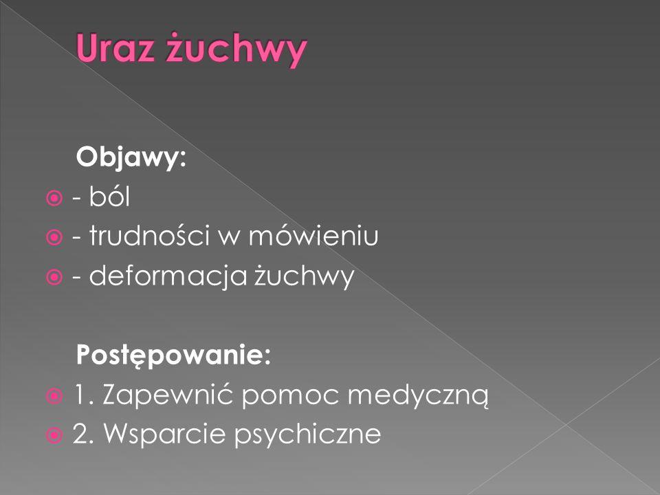 Objawy: - ból - trudności w mówieniu - deformacja żuchwy Postępowanie: 1. Zapewnić pomoc medyczną 2. Wsparcie psychiczne