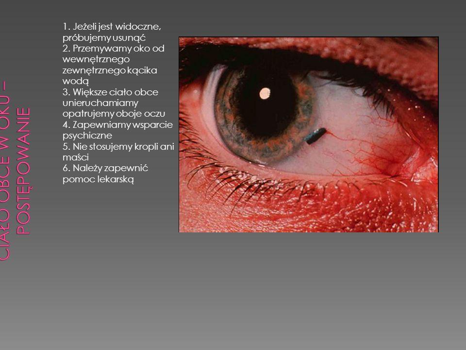 1. Jeżeli jest widoczne, próbujemy usunąć 2. Przemywamy oko od wewnętrznego zewnętrznego kącika wodą 3. Większe ciało obce unieruchamiamy opatrujemy o